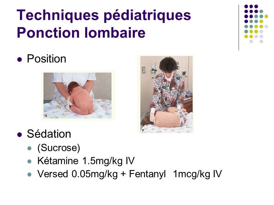 Techniques pédiatriques Ponction lombaire Position Sédation (Sucrose) Kétamine 1.5mg/kg IV Versed 0.05mg/kg + Fentanyl 1mcg/kg IV