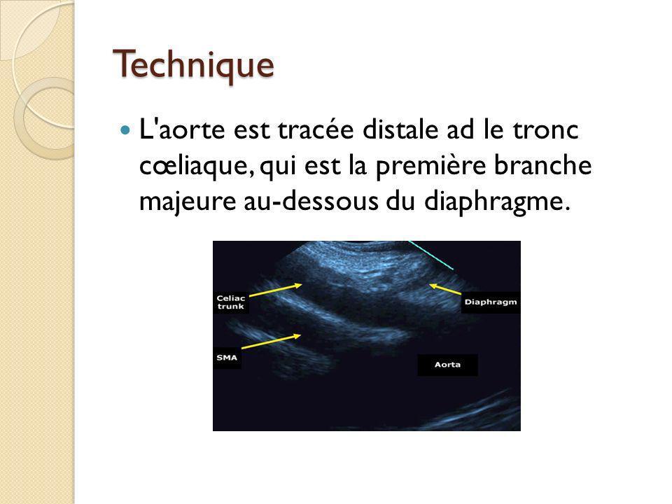 Technique L'aorte est tracée distale ad le tronc cœliaque, qui est la première branche majeure au-dessous du diaphragme.