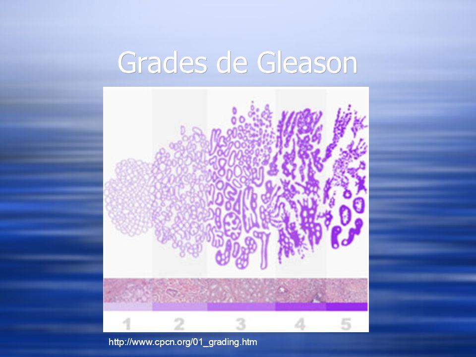 Grades de Gleason http://www.cpcn.org/01_grading.htm