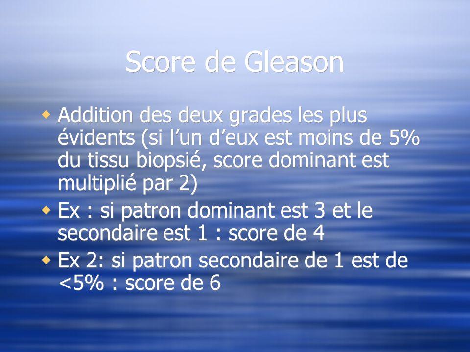 Score de Gleason Addition des deux grades les plus évidents (si lun deux est moins de 5% du tissu biopsié, score dominant est multiplié par 2) Ex : si