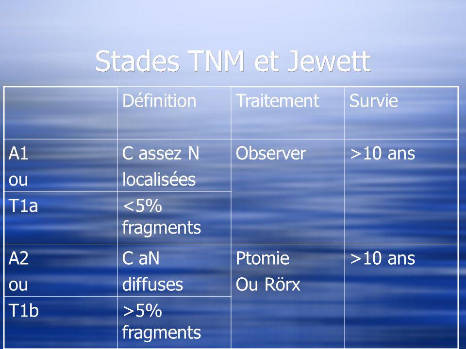 Stades TNM et Jewett DéfinitionTraitementSurvie A1 ou C assez N localisées Observer>10 ans T1a<5% fragments A2 ou C aN diffuses Ptomie Ou Rörx >10 ans