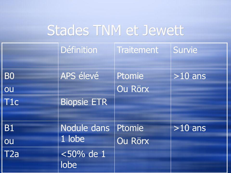 Stades TNM et Jewett DéfinitionTraitementSurvie B0 ou APS élevéPtomie Ou Rörx >10 ans T1cBiopsie ETR B1 ou Nodule dans 1 lobe Ptomie Ou Rörx >10 ans T