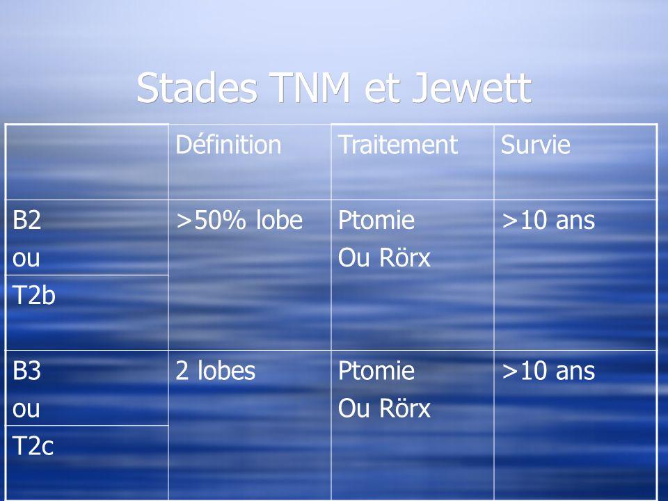 Stades TNM et Jewett DéfinitionTraitementSurvie B2 ou >50% lobePtomie Ou Rörx >10 ans T2b B3 ou 2 lobesPtomie Ou Rörx >10 ans T2c