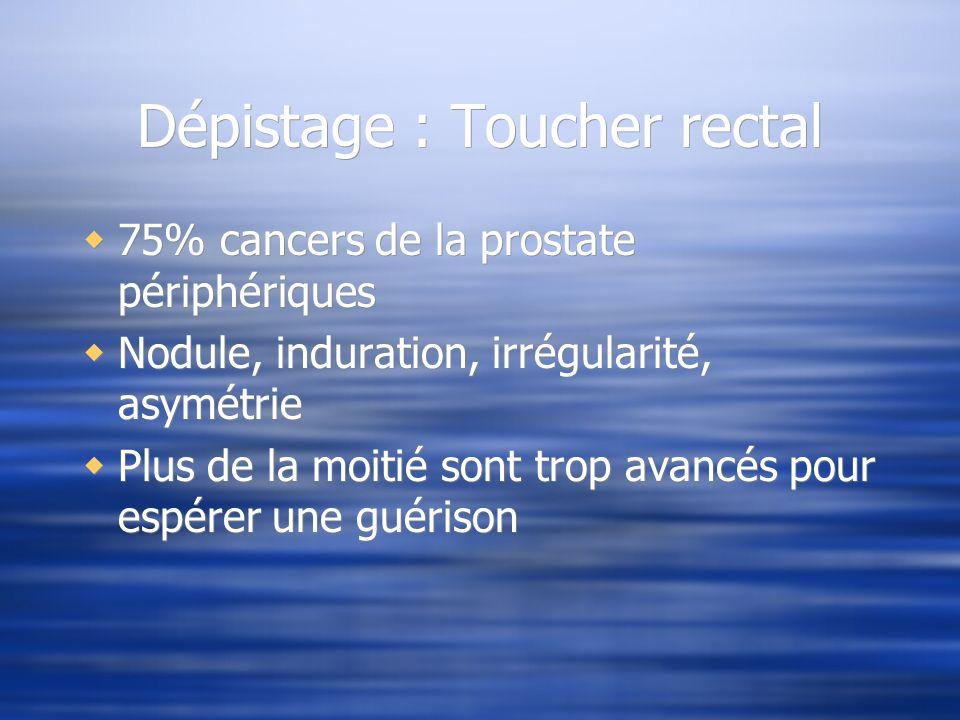 Dépistage : Toucher rectal 75% cancers de la prostate périphériques Nodule, induration, irrégularité, asymétrie Plus de la moitié sont trop avancés po