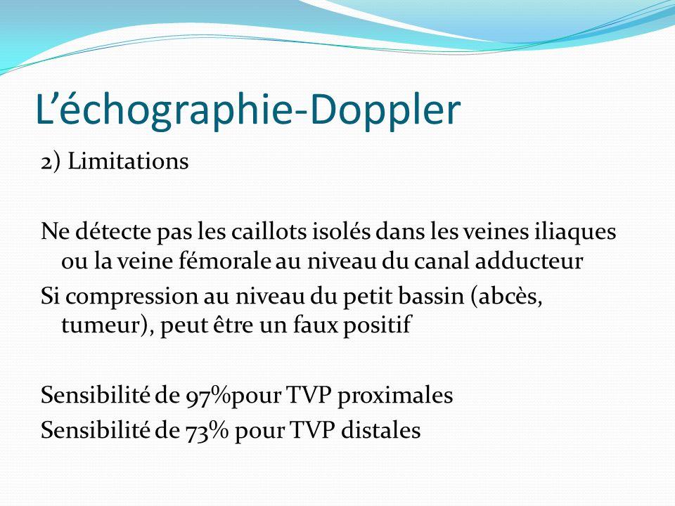 Léchographie-Doppler 2) Limitations Ne détecte pas les caillots isolés dans les veines iliaques ou la veine fémorale au niveau du canal adducteur Si c