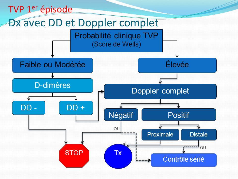 Probabilité clinique TVP (Score de Wells) Élevée DD -DD + STOP Doppler complet Négatif Proximale Faible ou Modérée Contrôle sérié Tx D-dimères TVP 1 e