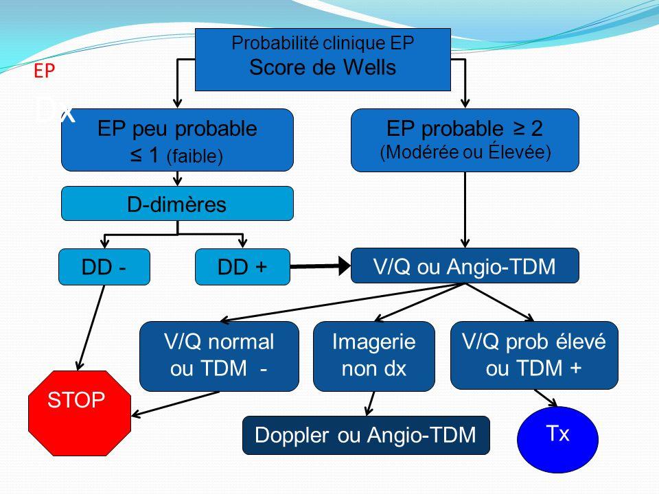 Probabilité clinique EP Score de Wells EP probable 2 (Modérée ou Élevée) DD -DD + STOP V/Q ou Angio-TDM EP peu probable 1 (faible) Tx D-dimères Imager