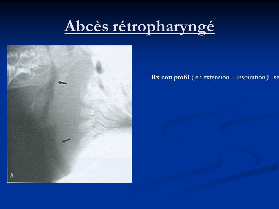 Abcès rétropharyngé Rx cou profil ( en extension – inspiration ) sensibilité 90% espace rétropharyngé > 1 CV ou 7mm