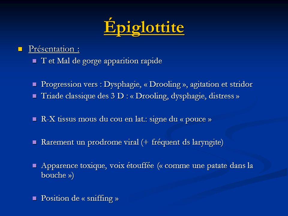 Épiglottite Présentation : Présentation : T et Mal de gorge apparition rapide T et Mal de gorge apparition rapide Progression vers : Dysphagie, « Droo