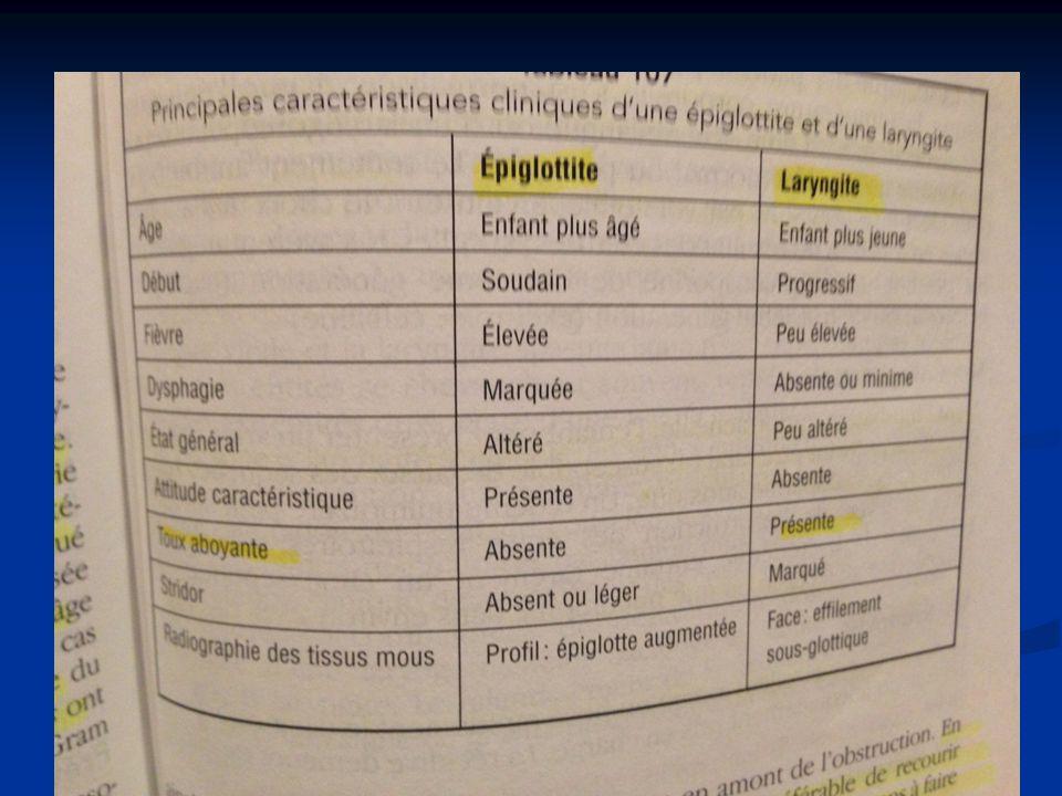Ddx épiglottite vs laryngite