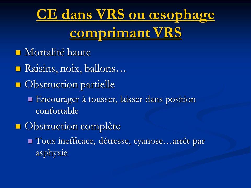 CE dans VRS ou œsophage comprimant VRS Mortalité haute Mortalité haute Raisins, noix, ballons… Raisins, noix, ballons… Obstruction partielle Obstructi