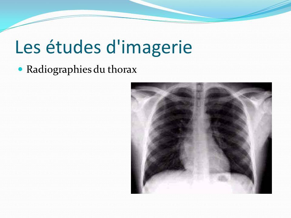Les études d'imagerie Radiographies du thorax