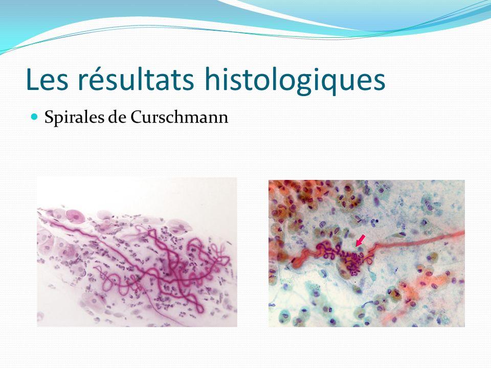 Les résultats histologiques Spirales de Curschmann
