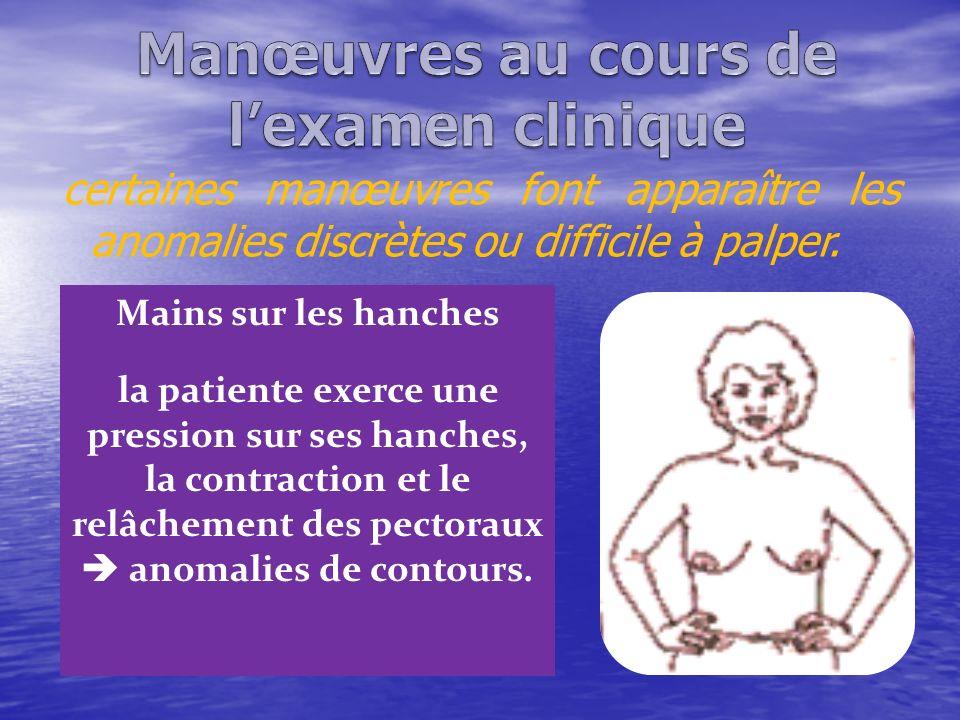 certaines manœuvres font apparaître les anomalies discrètes ou difficile à palper. Mains sur les hanches la patiente exerce une pression sur ses hanch
