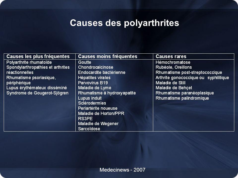 Causes des polyarthrites Medecinews - 2007
