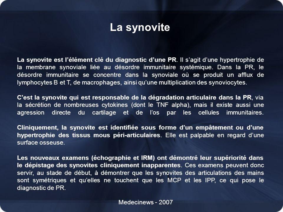 La synovite Medecinews - 2007 La synovite est lélément clé du diagnostic dune PR. Il sagit dune hypertrophie de la membrane synoviale liée au désordre
