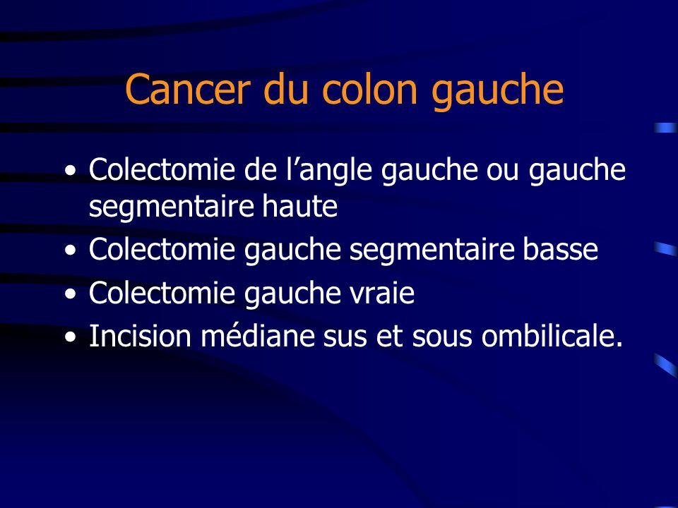 Cancer du colon gauche Colectomie de langle gauche ou gauche segmentaire haute Colectomie gauche segmentaire basse Colectomie gauche vraie Incision mé
