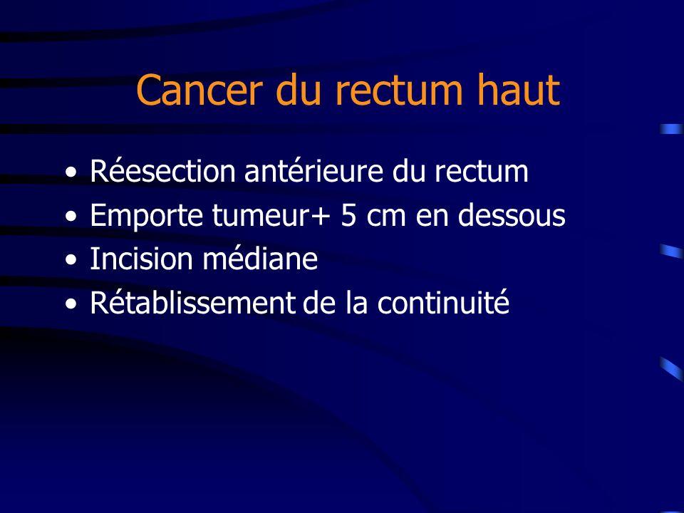 Cancer du rectum haut Réesection antérieure du rectum Emporte tumeur+ 5 cm en dessous Incision médiane Rétablissement de la continuité