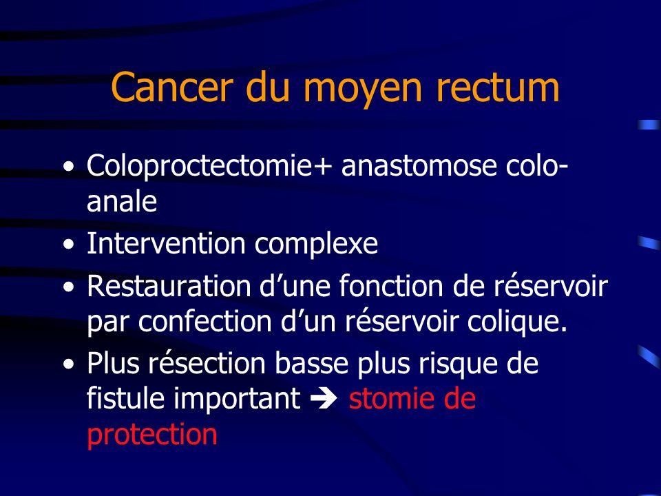 Cancer du moyen rectum Coloproctectomie+ anastomose colo- anale Intervention complexe Restauration dune fonction de réservoir par confection dun réser
