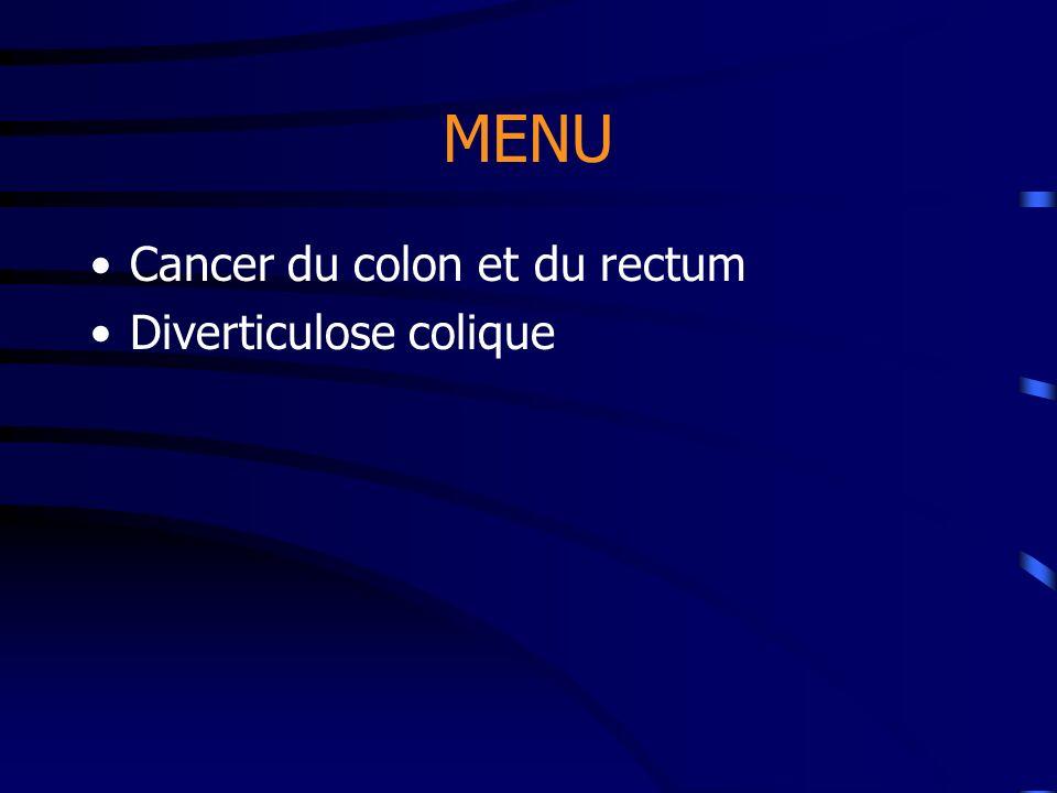 MENU Cancer du colon et du rectum Diverticulose colique