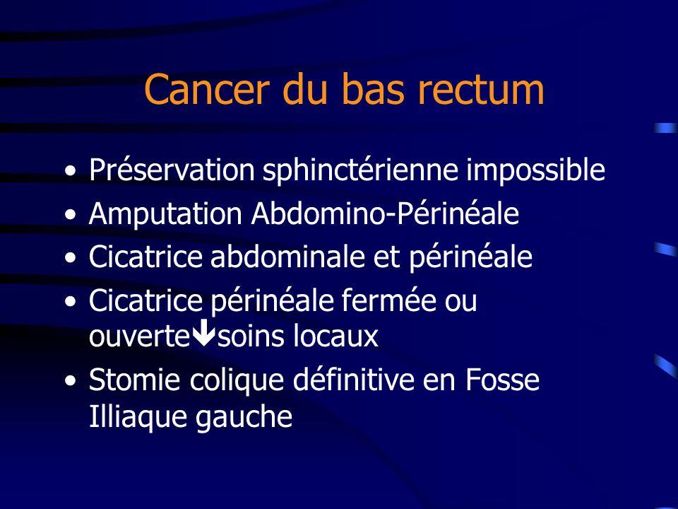 Cancer du bas rectum Préservation sphinctérienne impossible Amputation Abdomino-Périnéale Cicatrice abdominale et périnéale Cicatrice périnéale fermée