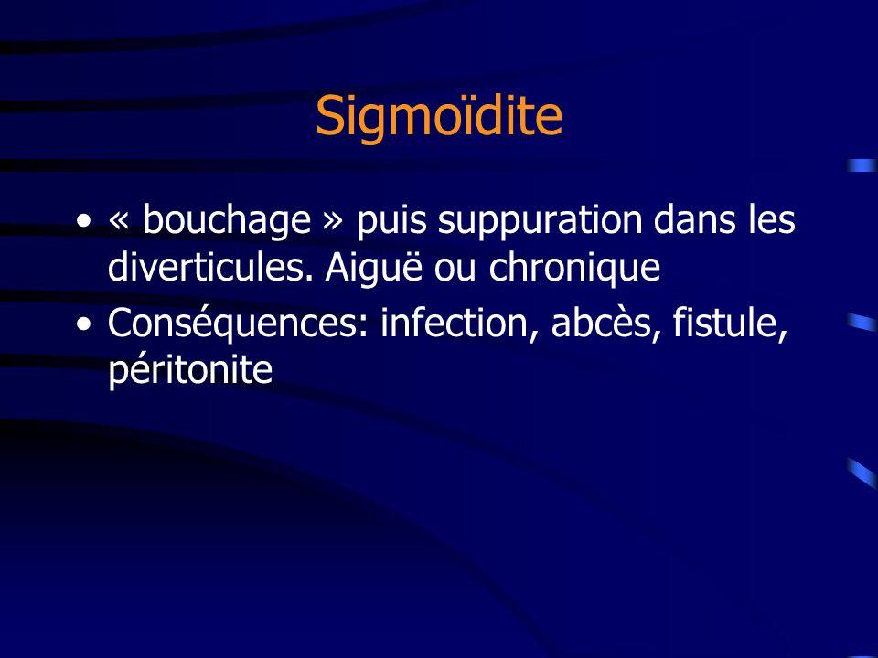 Sigmoïdite « bouchage » puis suppuration dans les diverticules. Aiguë ou chronique Conséquences: infection, abcès, fistule, péritonite