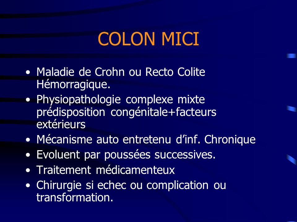 COLON MICI Maladie de Crohn ou Recto Colite Hémorragique. Physiopathologie complexe mixte prédisposition congénitale+facteurs extérieurs Mécanisme aut