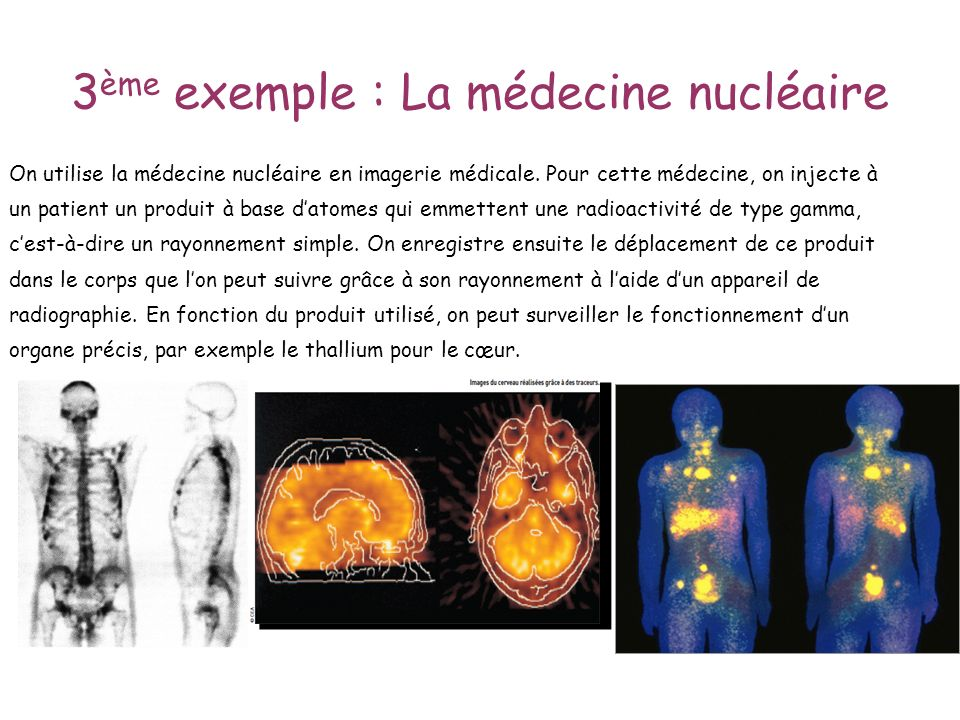 3 ème exemple : La médecine nucléaire On utilise la médecine nucléaire en imagerie médicale. Pour cette médecine, on injecte à un patient un produit à