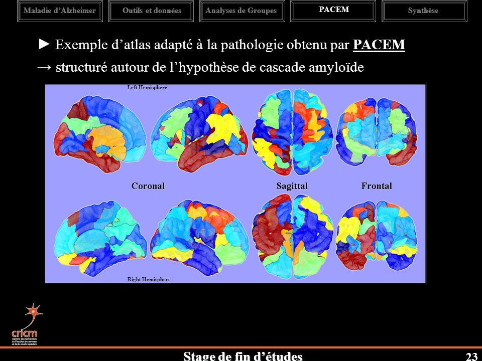 Stage de fin détudes Maladie dAlzheimerAnalyses de Groupes PACEM SynthèseOutils et données Exemple datlas adapté à la pathologie obtenu par PACEM structuré autour de lhypothèse de cascade amyloïde 23 Left Hemisphere Right Hemisphere