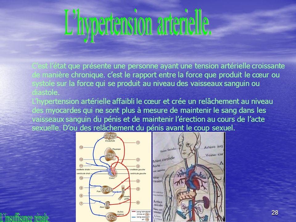28 Cest létat que présente une personne ayant une tension artérielle croissante de manière chronique.