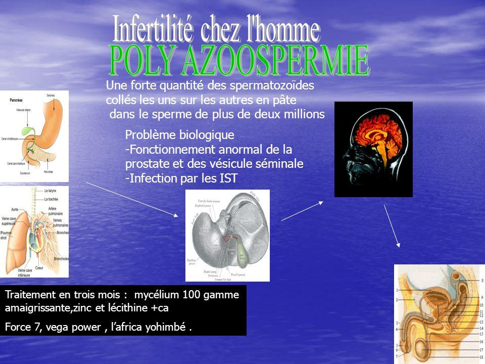 53 Problème biologique -Fonctionnement anormal de la prostate et des vésicule séminale -Infection par les IST Traitement en trois mois : mycélium 100 gamme amaigrissante,zinc et lécithine +ca Force 7, vega power, lafrica yohimbé.