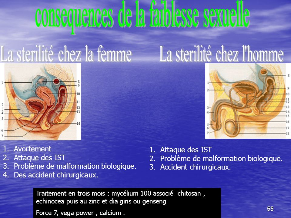 55 1.Attaque des IST 2.Problème de malformation biologique.
