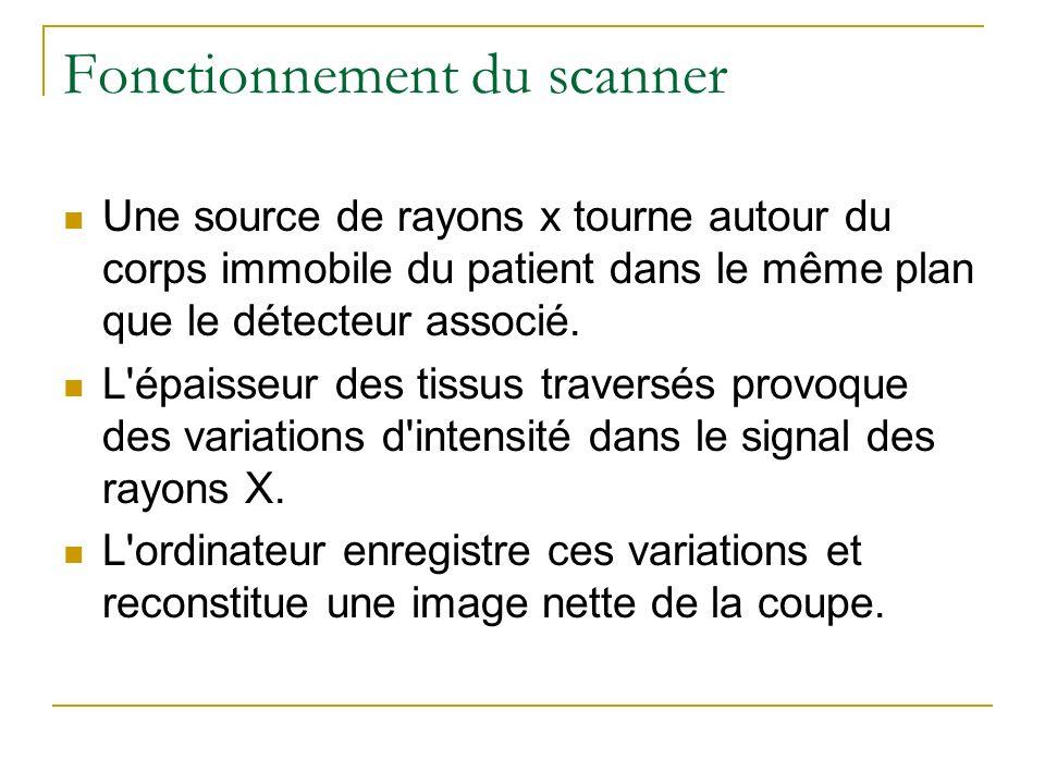 Fonctionnement du scanner Une source de rayons x tourne autour du corps immobile du patient dans le même plan que le détecteur associé. L'épaisseur de