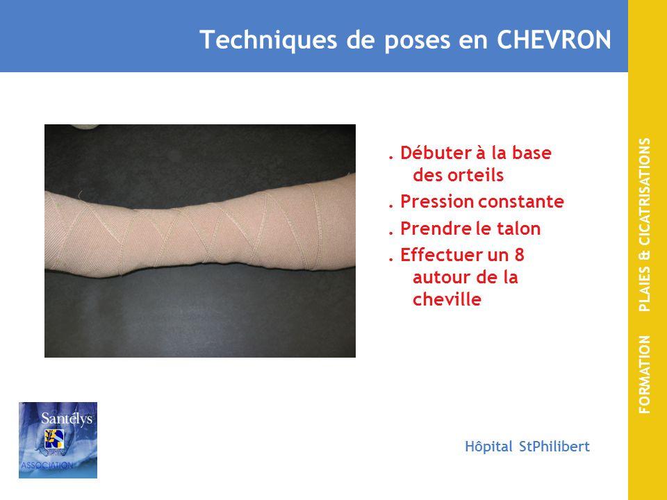 FORMATION PLAIES & CICATRISATIONS Hôpital StPhilibert Technique de pose classique