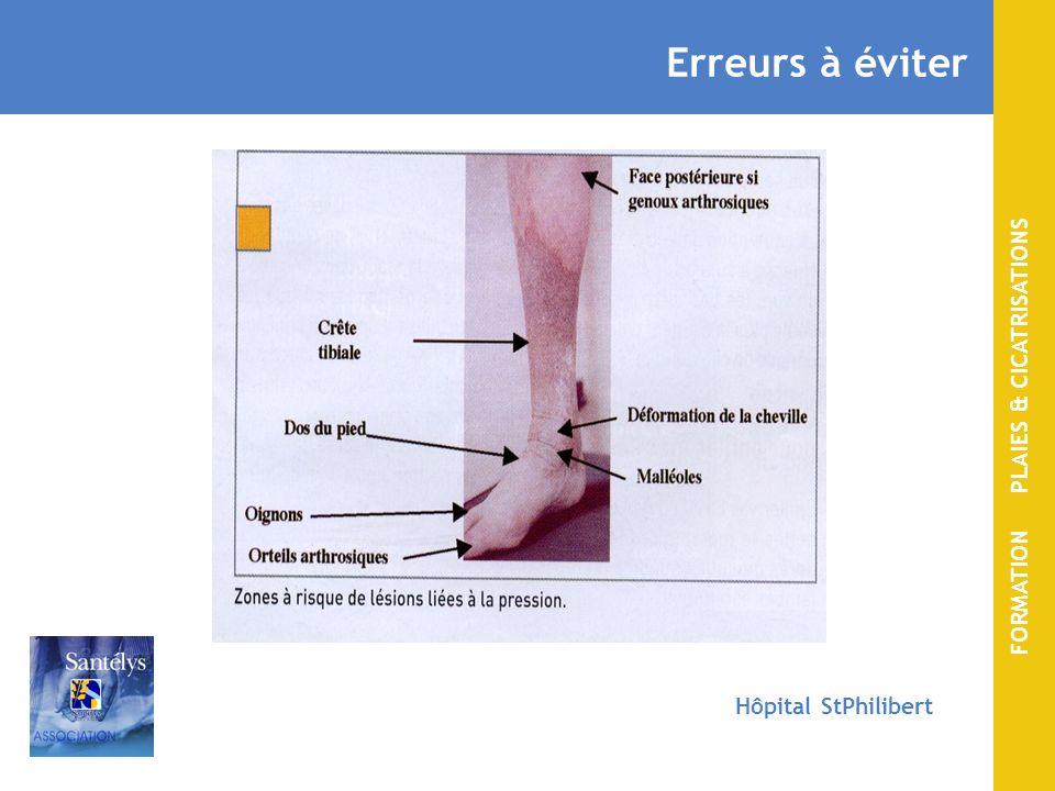 FORMATION PLAIES & CICATRISATIONS Hôpital StPhilibert Erreurs à éviter Bandage trop serré sans protection sur peau fragile = plaie