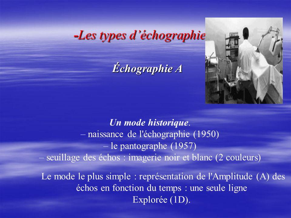 -Les types déchographie -Les types déchographie Échographie A Échographie A Le mode le plus simple : représentation de l'Amplitude (A) des échos en fo