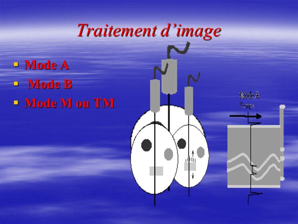 Traitement dimage Mode A M Mode B Mode M ou TM