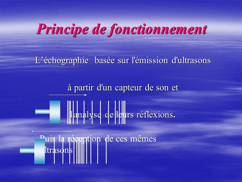 Léchographie basée sur l'émission d'ultrasons à partir d'un capteur de son et l'analyse de leurs réflexions. Principe de fonctionnement Principe de fo