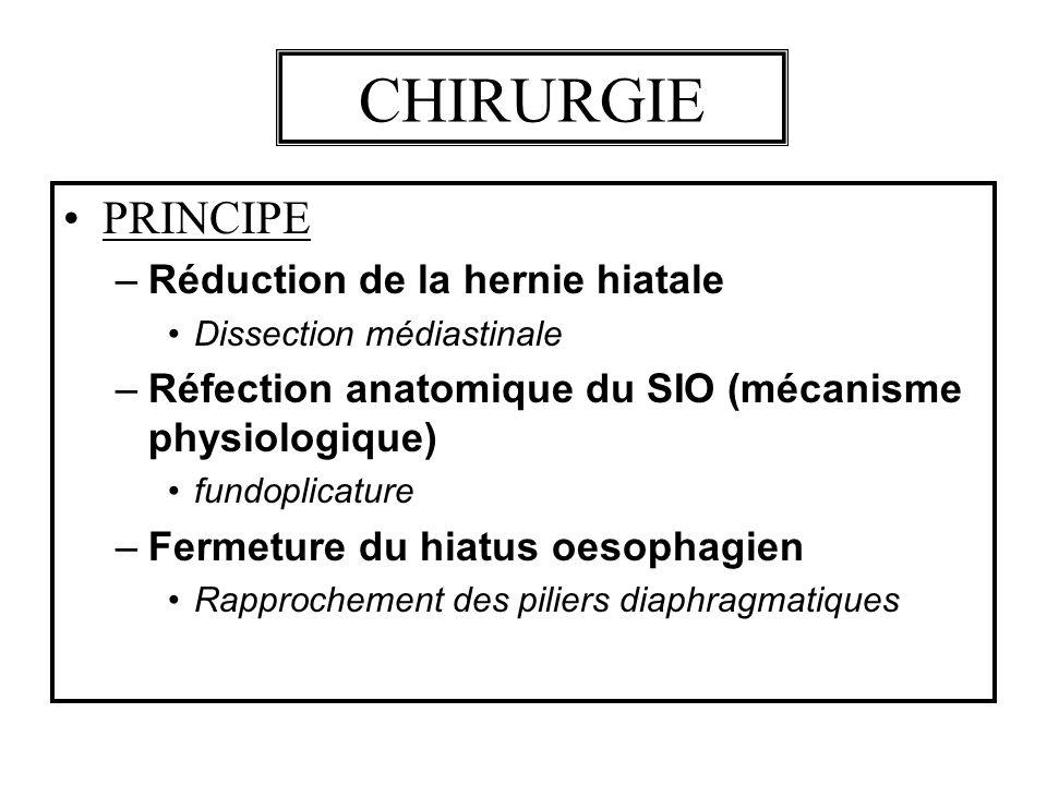 CHIRURGIE PRINCIPE –Réduction de la hernie hiatale Dissection médiastinale –Réfection anatomique du SIO (mécanisme physiologique) fundoplicature –Ferm