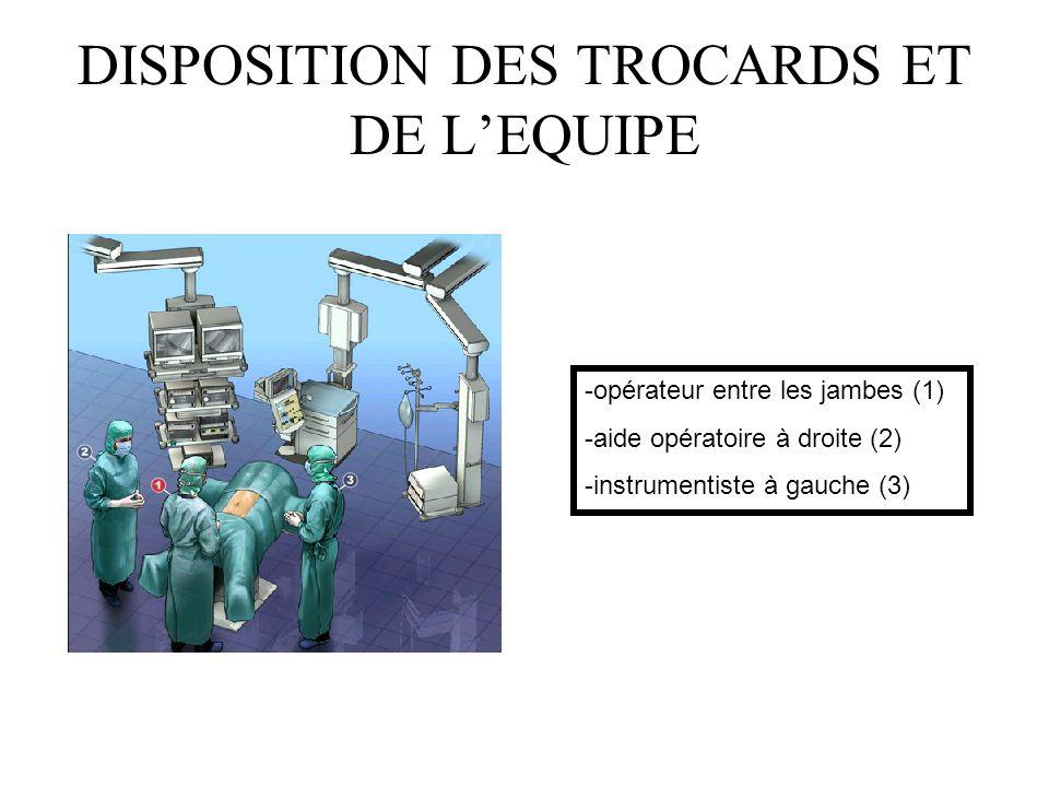 DISPOSITION DES TROCARDS ET DE LEQUIPE -opérateur entre les jambes (1) -aide opératoire à droite (2) -instrumentiste à gauche (3)