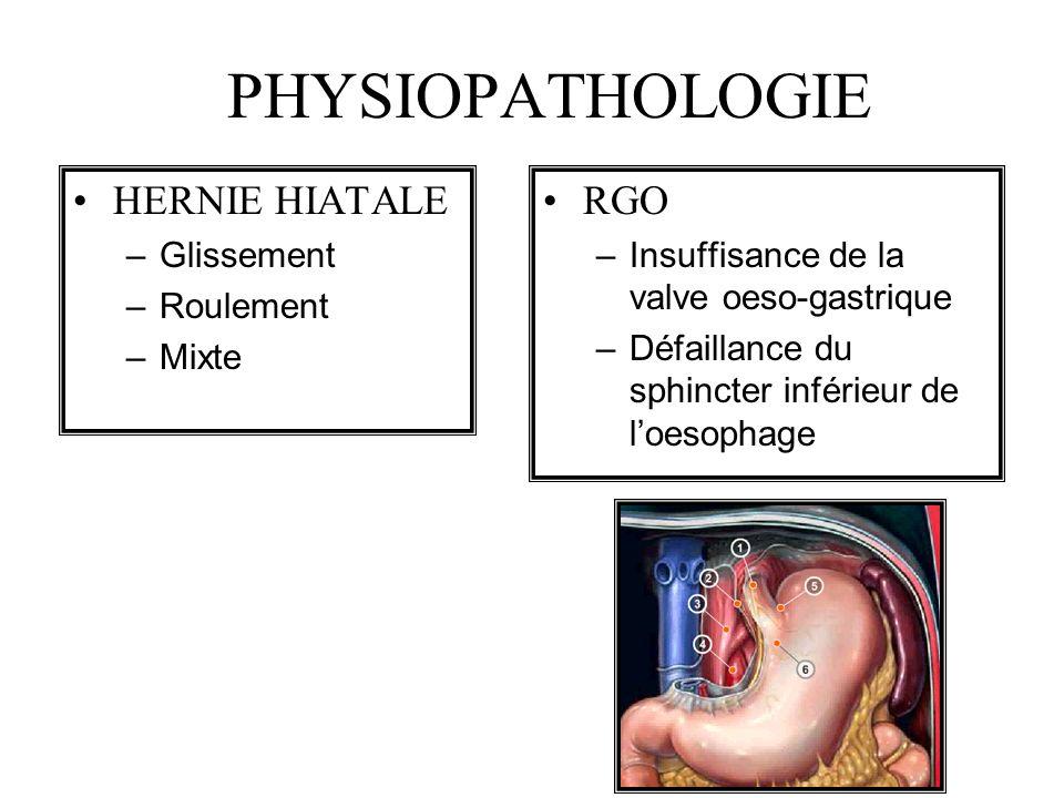 PHYSIOPATHOLOGIE HERNIE HIATALE –Glissement –Roulement –Mixte RGO –Insuffisance de la valve oeso-gastrique –Défaillance du sphincter inférieur de loes