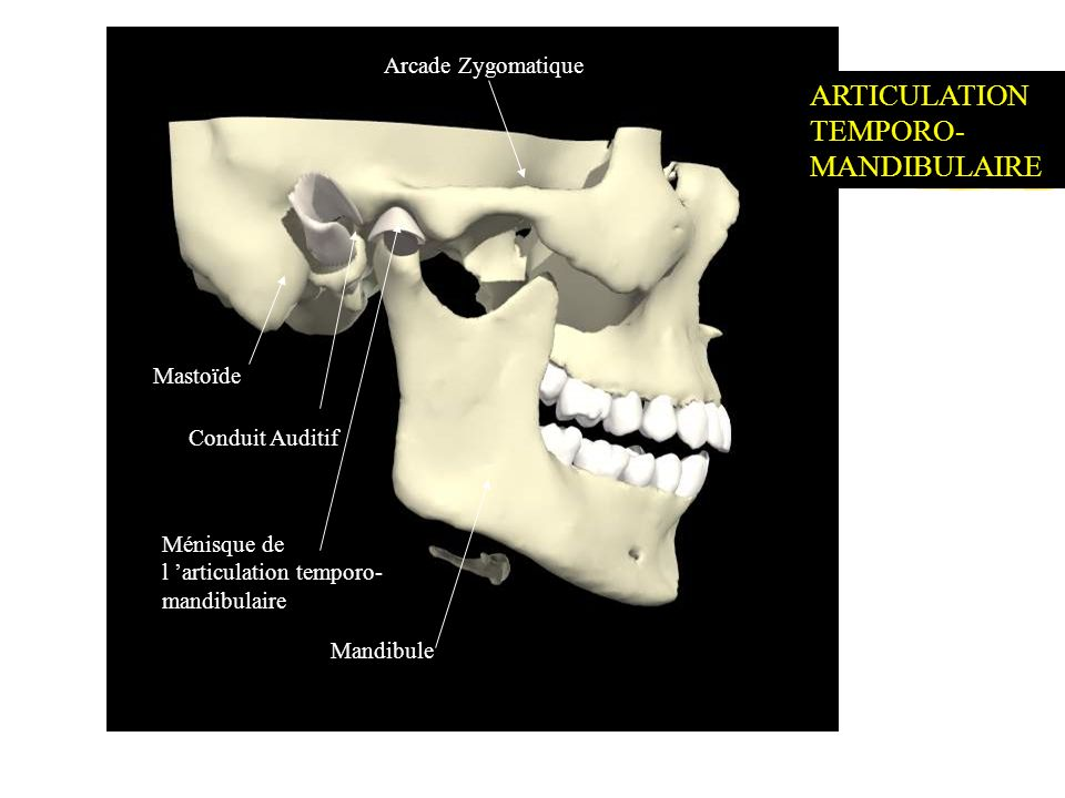 Mastoïde Conduit Auditif Ménisque de l articulation temporo- mandibulaire Mandibule Arcade Zygomatique ARTICULATION TEMPORO- MANDIBULAIRE