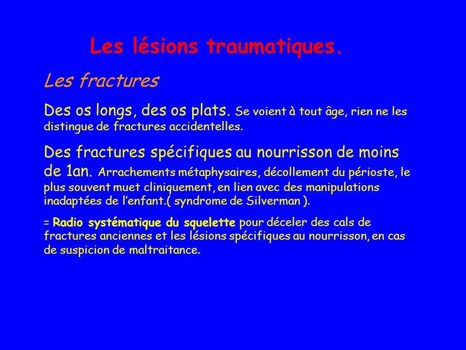 Les lésions traumatiques. Les fractures Des os longs, des os plats. Se voient à tout âge, rien ne les distingue de fractures accidentelles. Des fractu