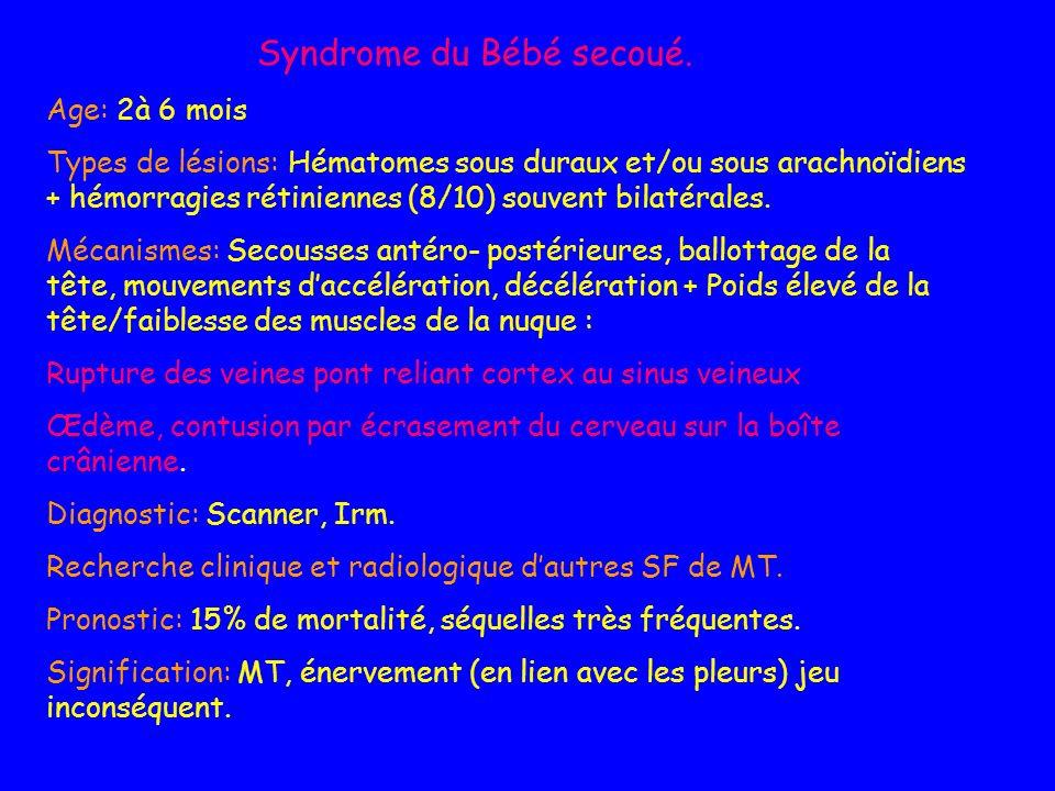 Syndrome du Bébé secoué. Age: 2à 6 mois Types de lésions: Hématomes sous duraux et/ou sous arachnoïdiens + hémorragies rétiniennes (8/10) souvent bila
