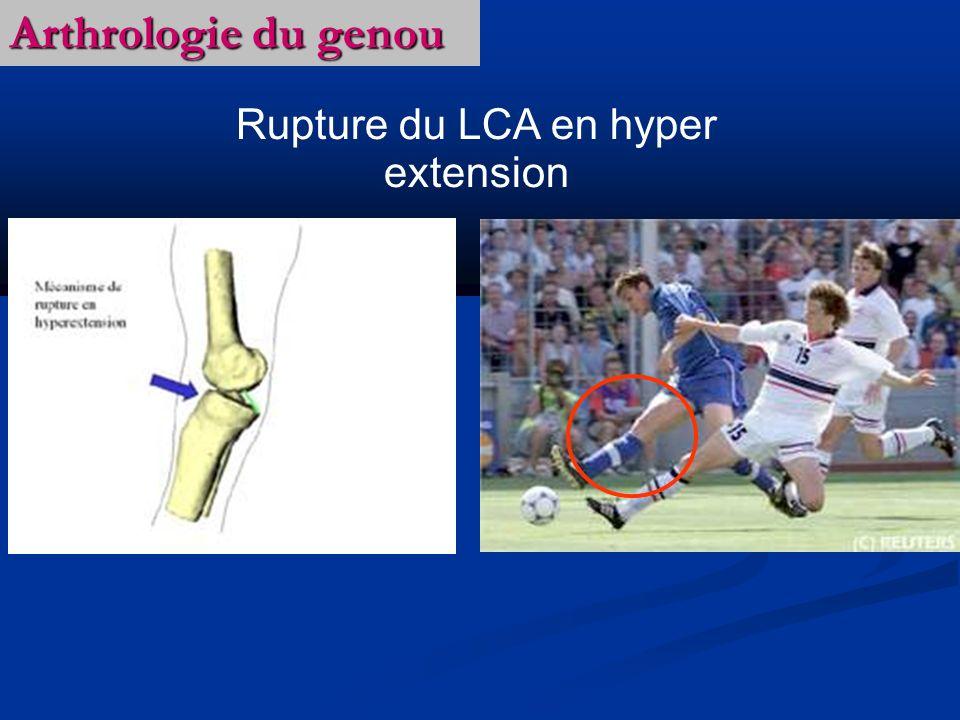 Arthrologie du genou Rupture du LCA en hyper extension