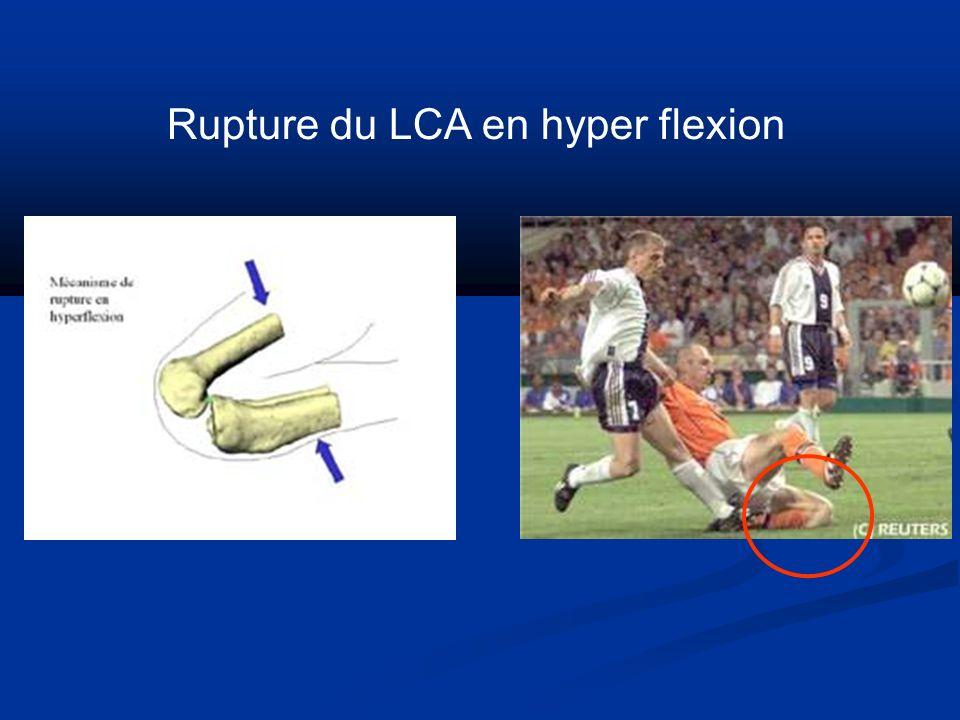 Rupture du LCA en hyper flexion