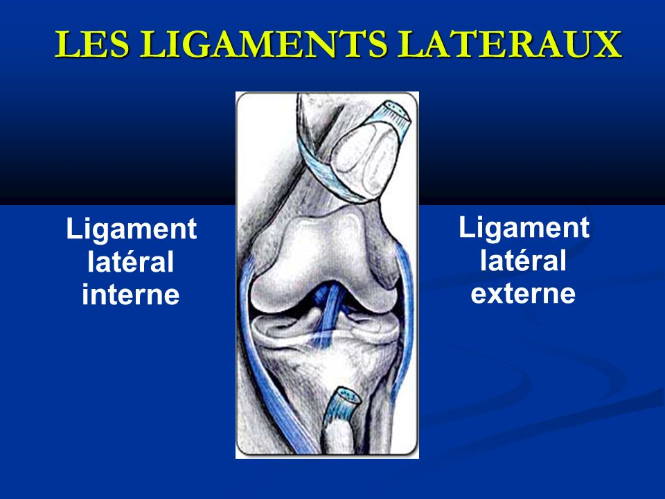 LES LIGAMENTS LATERAUX Ligament latéral interne Ligament latéral externe