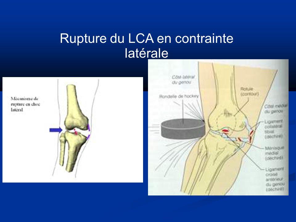 Rupture du LCA en contrainte latérale