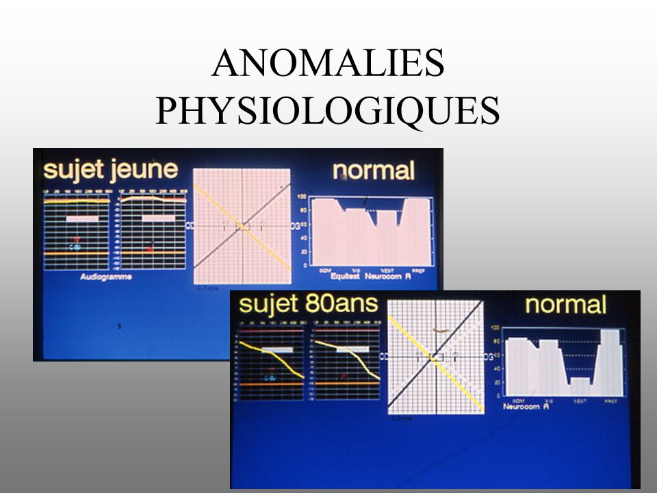 ANOMALIES PHYSIOLOGIQUES