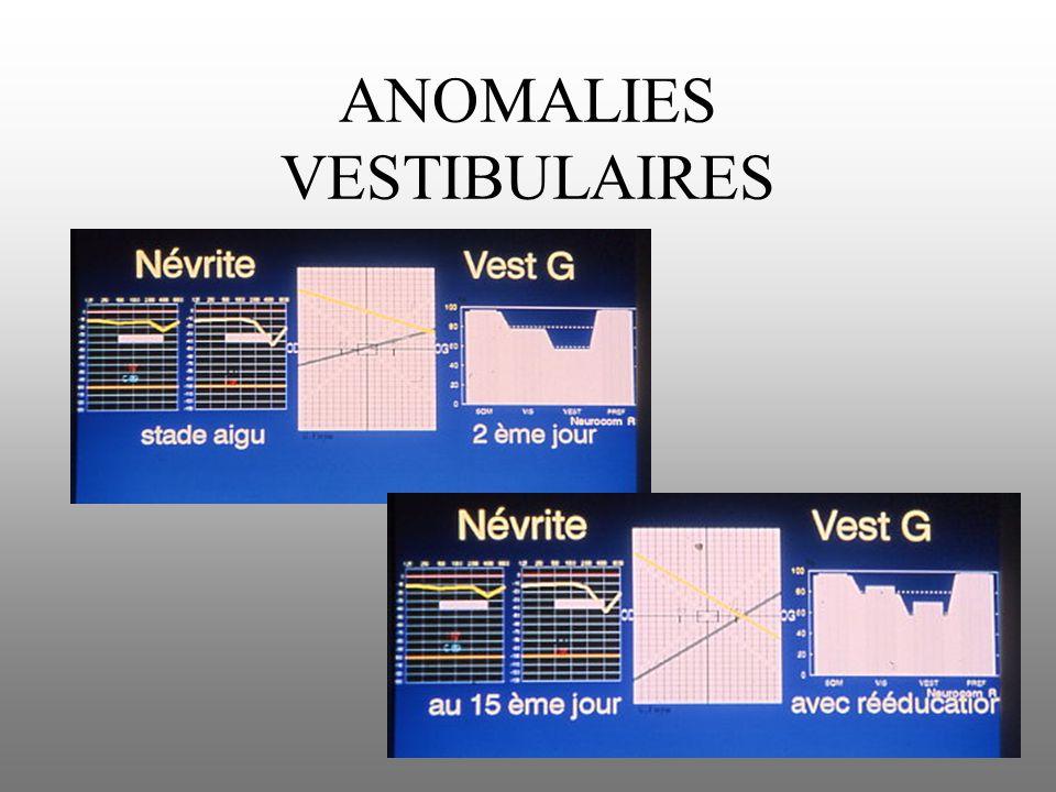 ANOMALIES VESTIBULAIRES